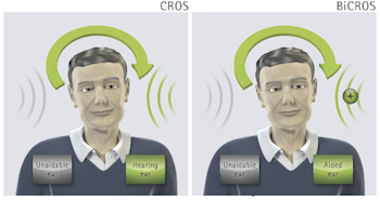 Phonak CROS for Single-Sided Deafness