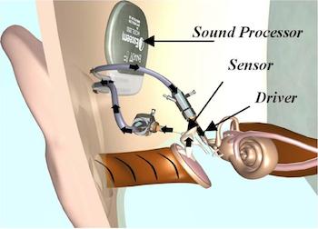 Envoy Medical Esteem Implant