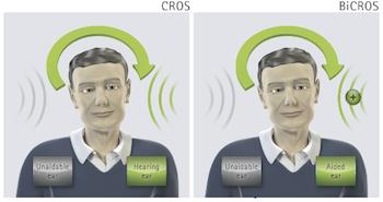 Phonak CROS for Single-Sided Deafness